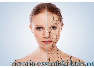 Лечение псориаза в России - программа Здоровая кожа | Санаторий «Виктория» г. Ессентуки