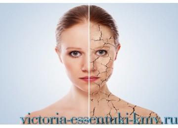 Лечение псориаза в России - программа Здоровая кожа   Санаторий «Виктория» г. Ессентуки
